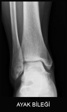 Ayak Bileği Hastalıkları